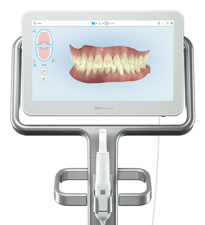 Escáner intraoral iTero