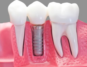 implantes-dentales-calidad