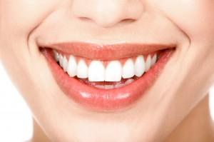 sonrisa con implantes dentales